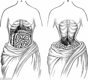 The effect of waist trainers